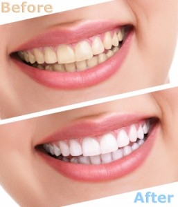 Before and After Whitening Offered at Logan Smiles Dental