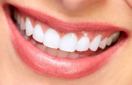 Clean white smile for Veneers